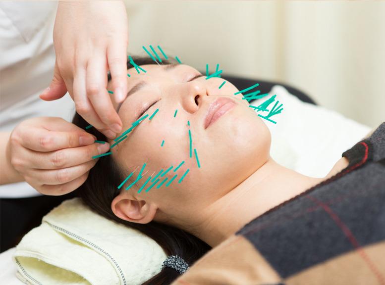 鍼による施術で効果がある身体の不調、症状
